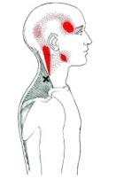 Triggerpointmassage uitstraling Massagepraktijk Jansen